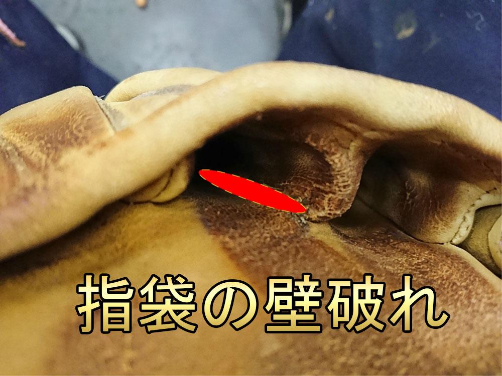 グローブの破れ修理 指袋壁1